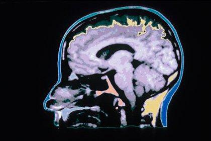 Нейробиологи определили области мозга, ответственные заалкоголизм